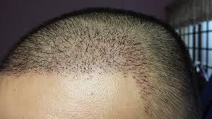مراقبتهای بعد کاشت مو