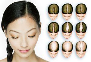 ریزش مو زنان
